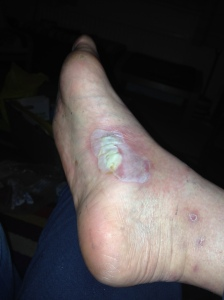 My blister. Probably a little tto nasty for a blog post. Comment if you don't like it and I take it down :)